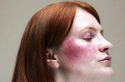 Vùng da bị chàm hóa khiến nhiều người lo sợ về sự nguy hiểm của nó