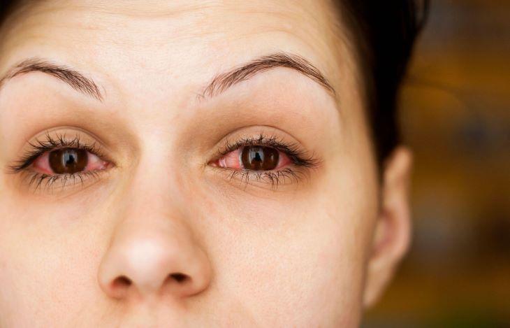 Buscopan có thể khiến cơ thể bị rối loạn điều tiết, gây khô mắt