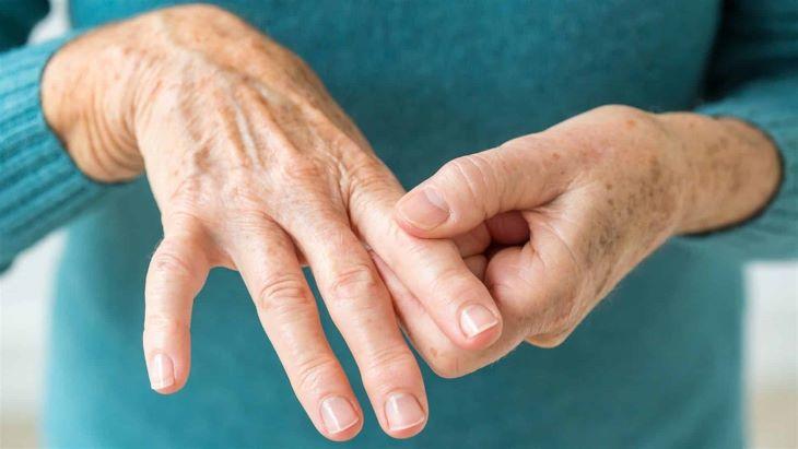Điều trị viêm khớp thấp là một trong những tác dụng nổi bật của Celecoxib