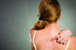 Viêm da cơ địa không lây lan từ người qua người nhưng lại lan ra các vùng da lành trên cơ thể khá nhanh nếu không điều trị kịp thời