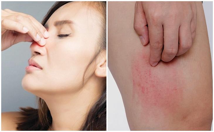 Thuốc được dùng để điều trị viêm mũi dị ứng và dị ứng ngoài da