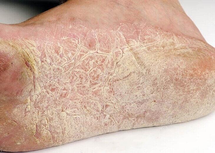Bệnh chàm khô ở chân