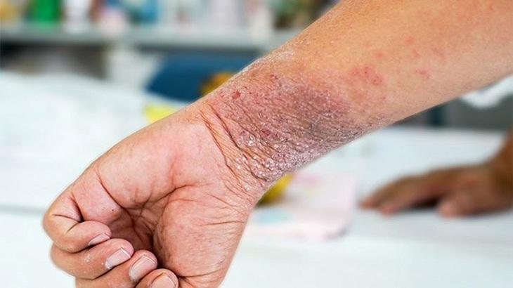 Có nhiều nguyên nhân gây ra bệnh chàm khô trong đó phải kể đến các rối loạn chuyển hóa từ bên trong