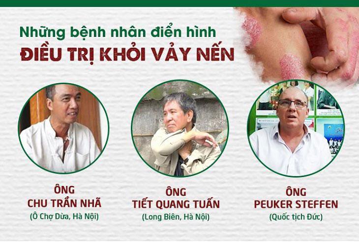 Các bệnh nhân điển hình điều trị khỏi vảy nến tại Thuốc dân tộc