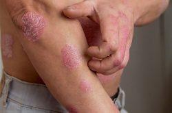 Hành động gãi chỉ khiến bệnh vảy nến nặng thêm