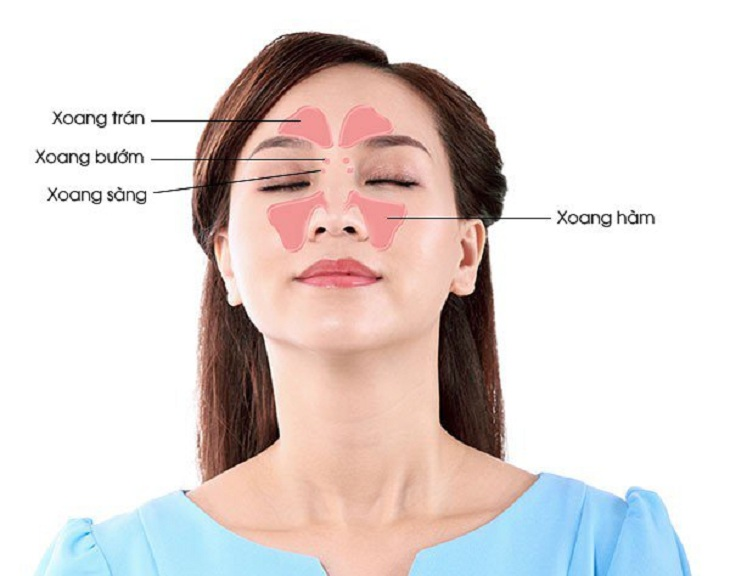 Bệnh viêm xoang mũi có thể gặp ở một một khoang xoang hoặc toàn bộ khoang xoang trong mũi