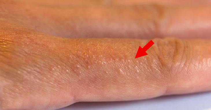 Bị chàm ở tay chân gây ra nhiều bất tiện trong cuộc sống