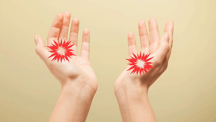Xét nghiệm dị ứng là điều nên làm nếu bạn thường xuyên bị chàm ở tay chân