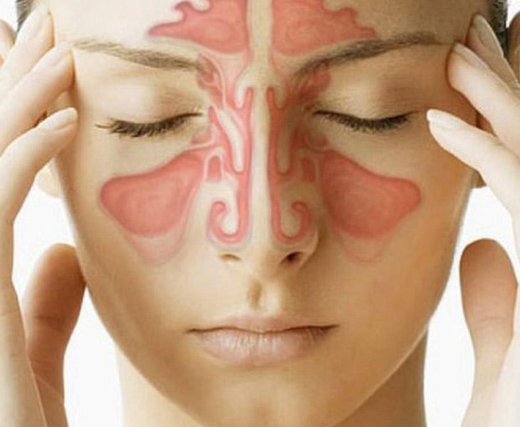 Biến chứng của viêm xoang sàng sau có thể gây ảnh hưởng tới mắt, tai và đường hô hấp
