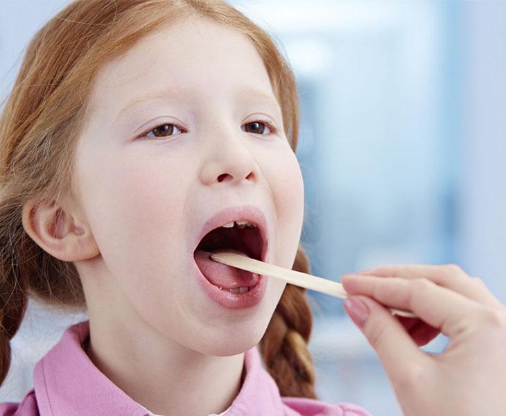 Trẻ bị viêm amidan nếu không được điều trị kịp thời có thể gây biến chứng nguy hiểm