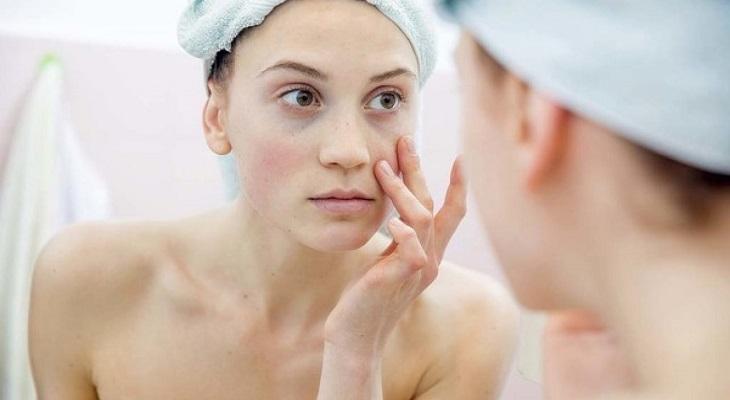 Cách chữa ngứa da mặt tại nhà đơn giản và hiệu quả là gì?