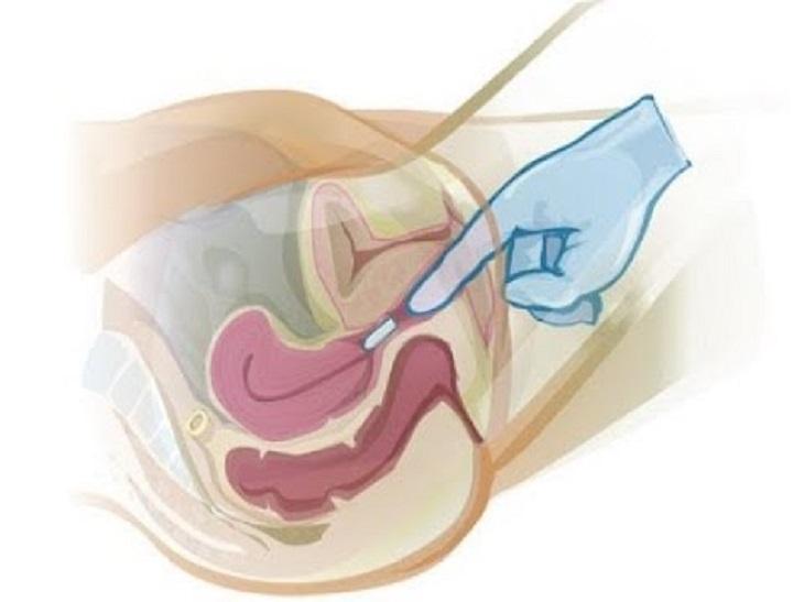 Thuốc đặt âm đao trị nấm polygynax và cách sử dụng