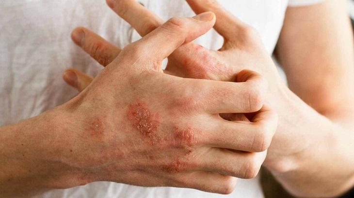 Viêm da cơ địa khiến người bệnh ngứa ngáy, khó chịu