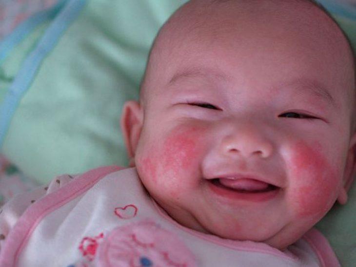 Chàm sữa là một trong những bệnh lý về da thường gặp ở trẻ dưới 2 tuổi