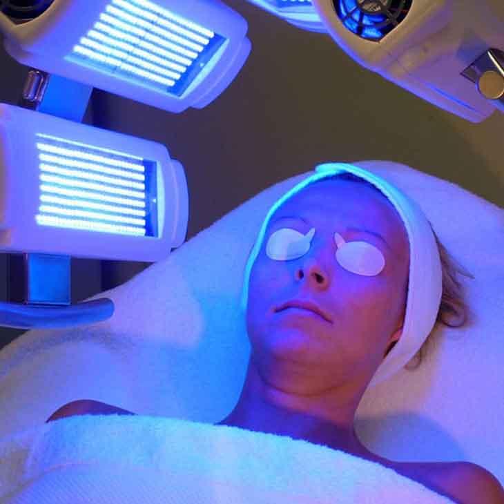 Điều trị vảy nến da mặt bằng quang trị liệu