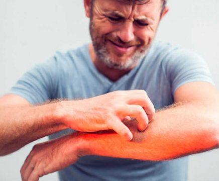 Da bị ngứa châm chích khiến người bệnh khó chịu và lo lắng