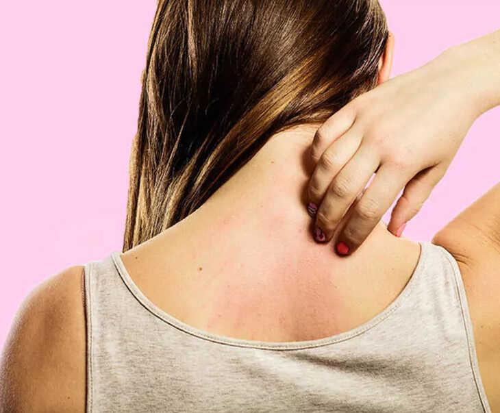 Tác dụng phụ của thuốc cũng là một trong những nguyên nhân khiến da bị ngứa, nổi mẩn đỏ