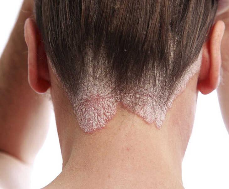 Bệnh á sừng khiến da đầu bị bong tróc, tổn thương