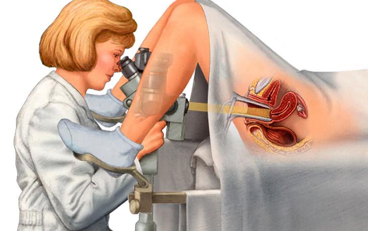 Các bác sĩ có thể nội soi tử cung để tìm nguyên nhân gây ra hiện tượng đã mãn kinh bị ra máu