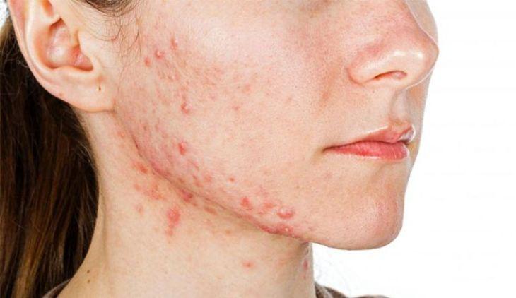 Tình trạng viêm da gây ngứa và nổi mụn