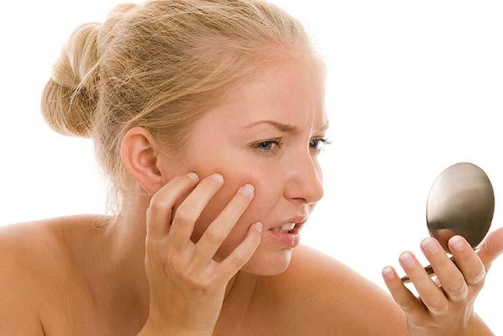 Phụ nữ thay đổi nội tiết tố khiến da mặt ngứa và sần sùi