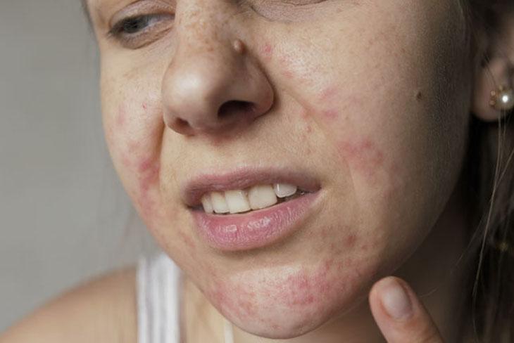 Nguyên nhân và cách khắc phục nhanh chóng da mặt bị ngứa và sần sùi