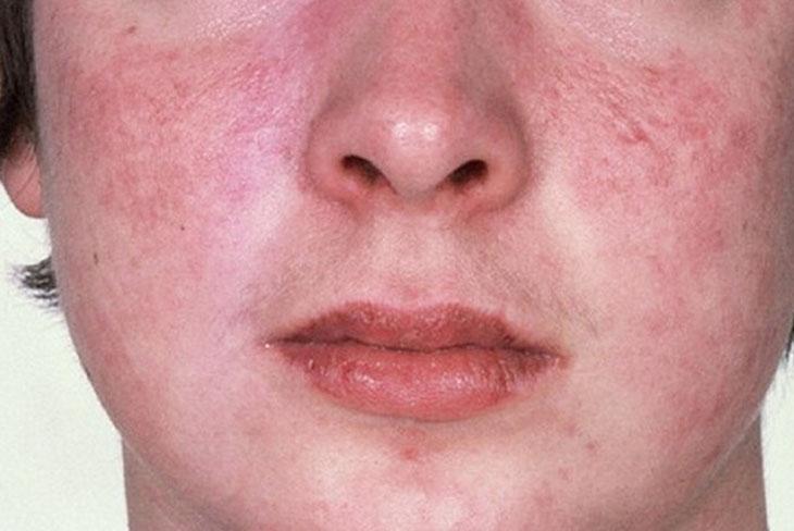 Tình trạng da mặt bị ngứa và khô có thể do mắc bệnh da liễu