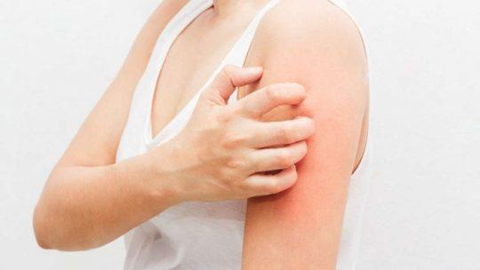 Da bị nổi mụn nước và ngứa khiến người bệnh cảm thấy khó chịu