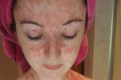 Dấu hiệu nhận biết vảy nến da mặt