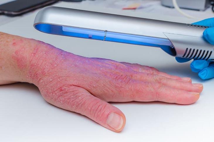 Quang trị liệu điều trị vảy nến hiệu quả