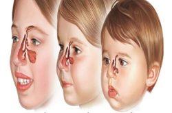 Điều trị viêm xoang cấp ở trẻ em cần tiến hành kịp thời