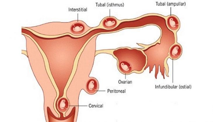Rong kinh có nguy hiểm không? Làm tăng nguy cơ mang thai ngoài tử cung