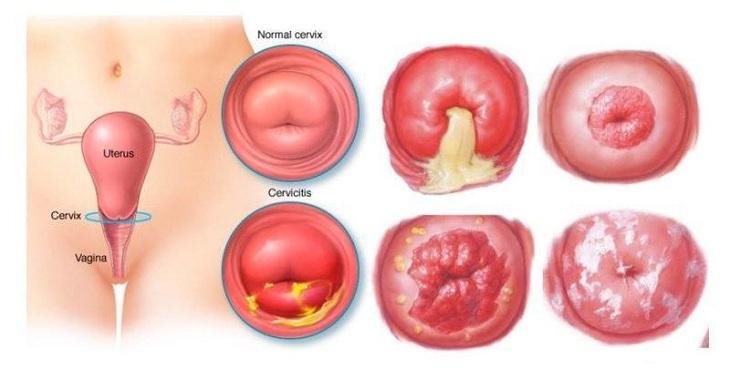 Huyết trắng ra nhiều là biểu hiện điển hình của bệnh viêm cổ tử cung