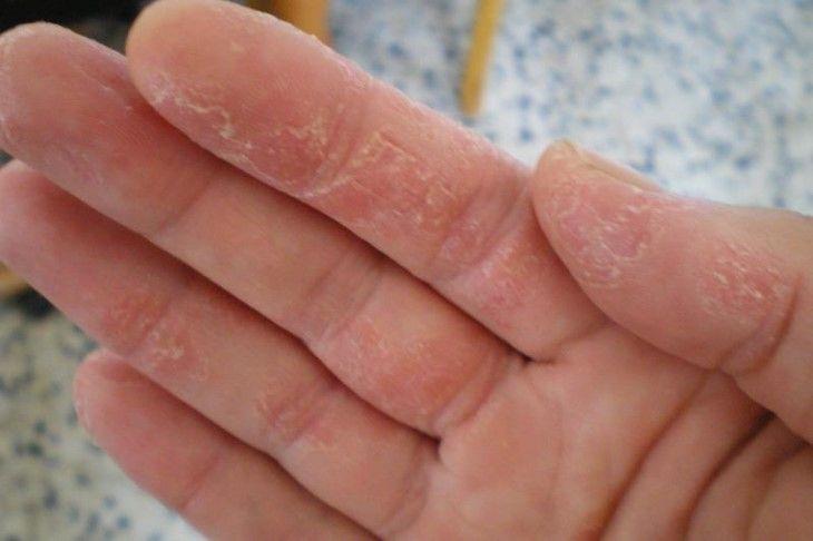 Lột da tay bị ngứa cảnh báo bệnh lý gì?