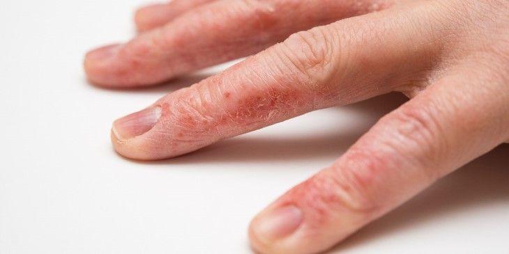 Lột da tay và ngứa khiến bạn cảm thấy khó chịu?