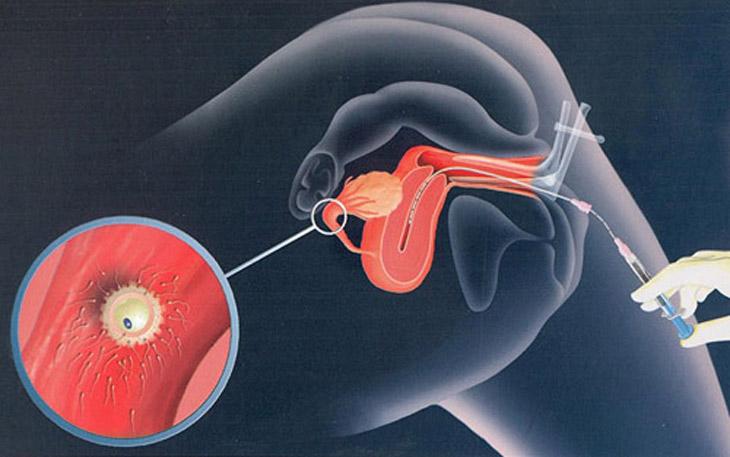 Thực hiện thụ tinh nhân tạo có thể giúp phụ nữ mãn kinh mang thai