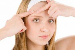 Mụn dậy thì là tình trạng phổ biến ở cả nam và nữ