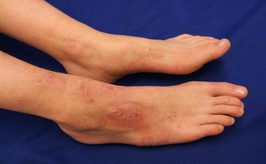 Ngứa bàn chân là điềm gì?