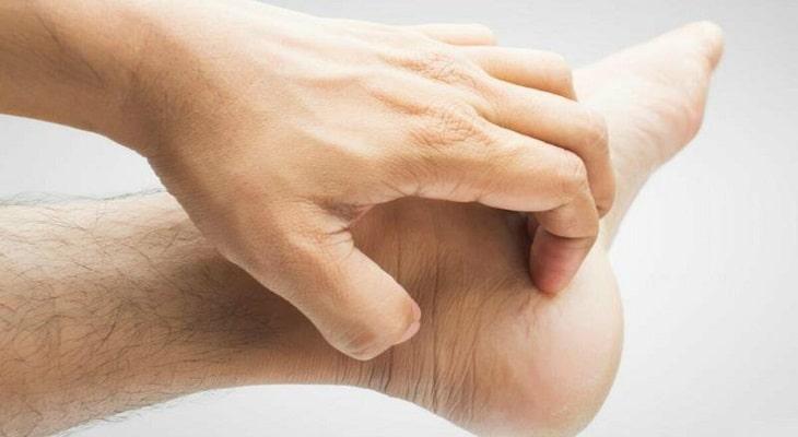 Ngứa chân là bệnh gì?