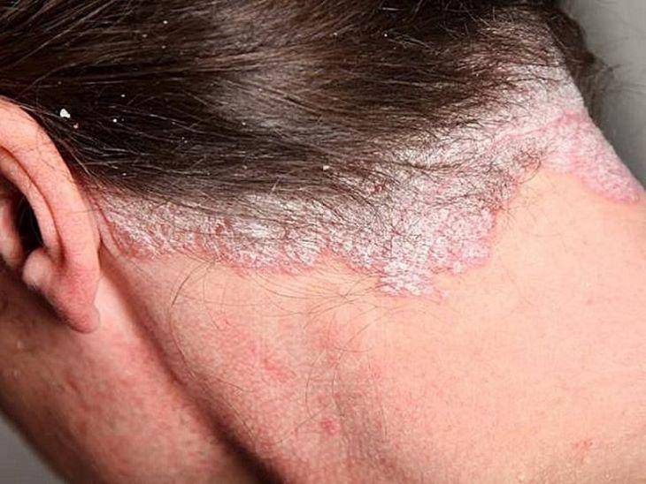 Bệnh vảy nến gây ngứa da đầu cần được sớm khắc phục để không gây ảnh hưởng đến cuộc sống và tâm lý người bệnh