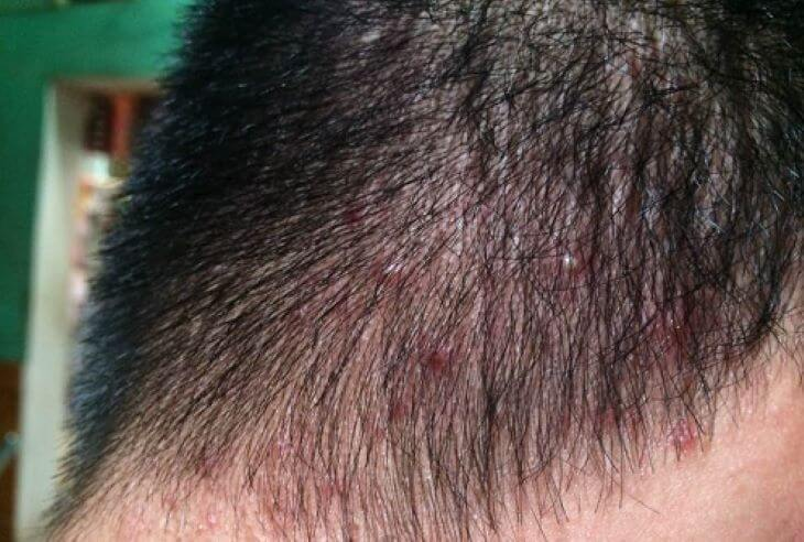 Nấm da đầu gây ngứa kèm theo tình trạng mọc mụn và rụng tóc