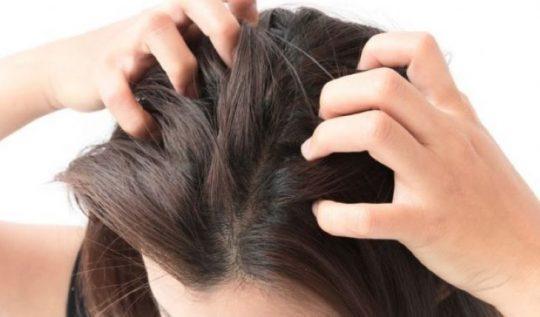 Ngứa da đầu là bệnh gì? Cách chữa