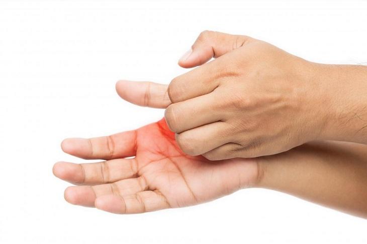 Ngứa đầu ngón tay do bệnh chàm