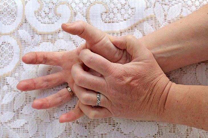 Ngứa đầu ngón tay ngón chân là bệnh lý dễ gặp ở nhiều người