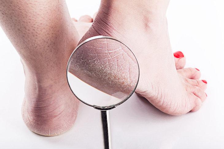 Làm thế nào để khắc phục tình trạng ngứa gót chân?