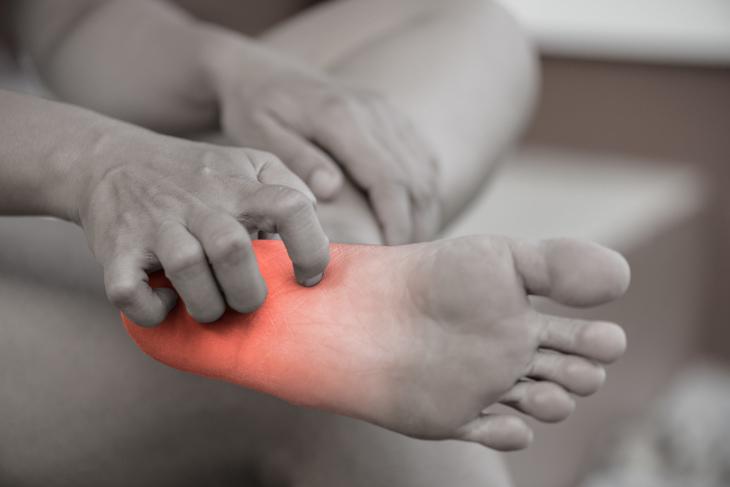 Nhiễm nấm da sẽ gây nên tình trạng ngứa gót chân