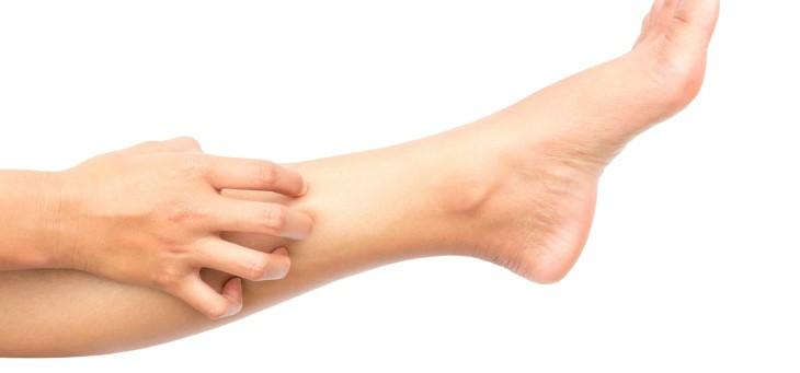 Ngứa hai ống chân có thể xuất phát từ vấn đề vệ sinh không sạch