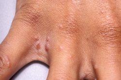 Ngứa kẽ ngón tay, ngón chân do các bệnh ngoài da