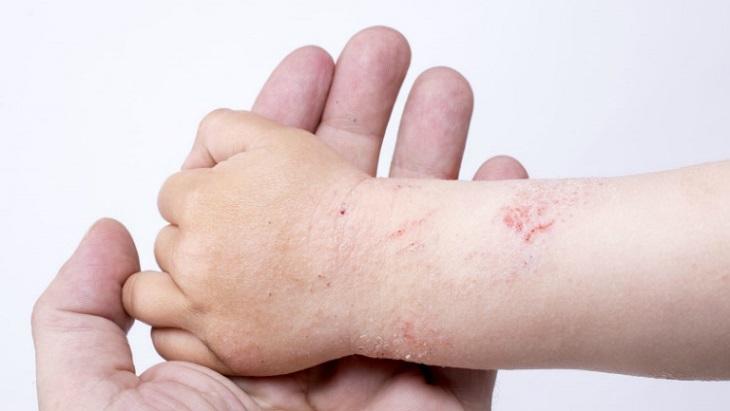 Bị ngứa kẽ ngón tay do bệnh chàm
