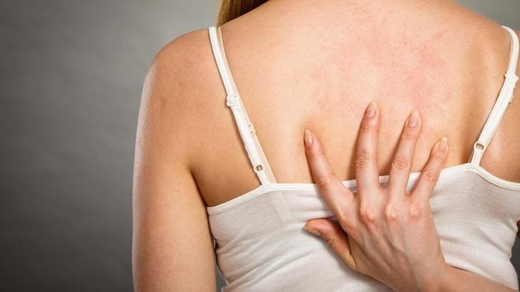 Ngứa lưng là hiện tượng thường gặp nhưng cần cảnh giác